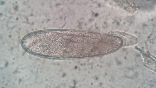 ネズミ盲腸蟯虫