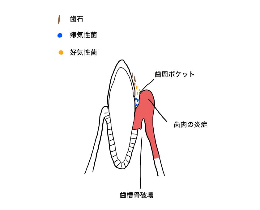 歯周炎を起こしている歯